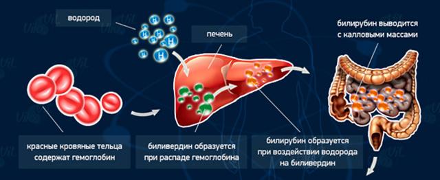 Норма билирубина у новорожденных, предел уровня в крови, таблица, анализ, причины повышенного, последствия, как снизить, как выводится из организма, лечение