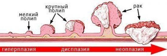 Полип желчного пузыря. Лечение без операции народными средствами, травами, чистотелом, рецепты диеты