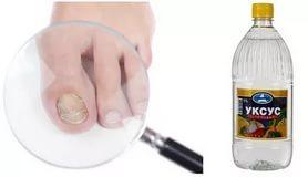 Грибок ногтей на ногах, чем лечить в домашних условиях симптомы, фото начальной, запущенной стадии, лекарства и народные средства: йод, уксус, перекись водорода