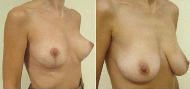 Молочные железы у женщин. Фото, разновидности груди, анатомия, внешний вид, где находятся, как меняются при кормлении, беременности, с возрастом