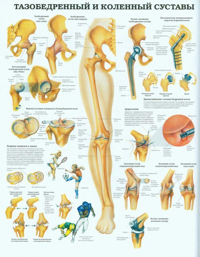 Боль в колене. Лечение народными средствами, если болит сбоку, при ходьбе, сгибании и разгибании. Причины