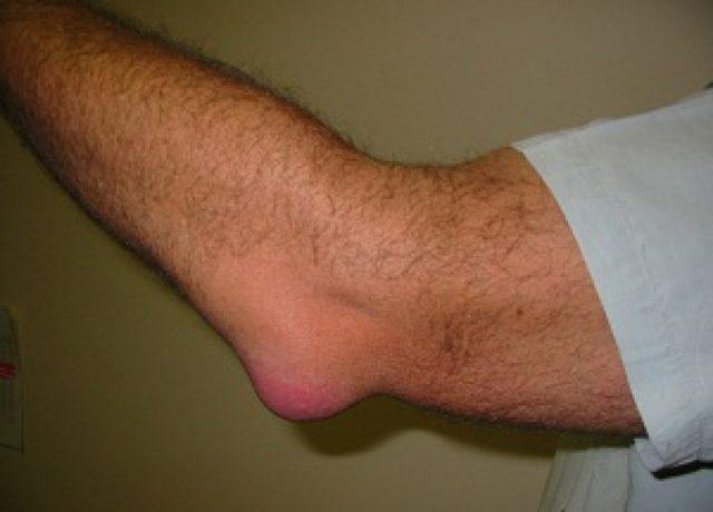 Бурсит локтевого сустава. Симптомы и лечение в домашних условиях. Фото, народные средства, мазь, препараты