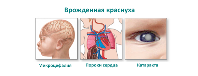 Краснуха у детей. Симптомы и лечение, профилактика, фото сыпи, стадия, как выглядит, проявляется, переносится, пути передачи. Инкубационный период прививка против кори