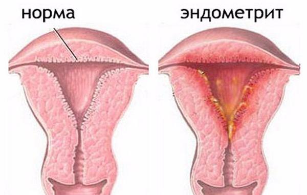 Эндометрит. Симптомы и лечение у женщин. Хронический, острый, после родов, кесарева, подострый, неспецифический, аутоиммунный, неактивный при беременности. Схема лечения, физиотерапия, свечи