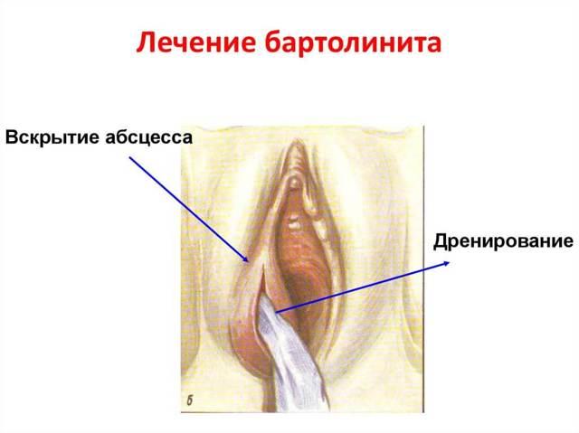 Бартолинит у женщин. Симптомы и лечение, фото стадии, как лечить при беременности, антибиотики, мази, операция