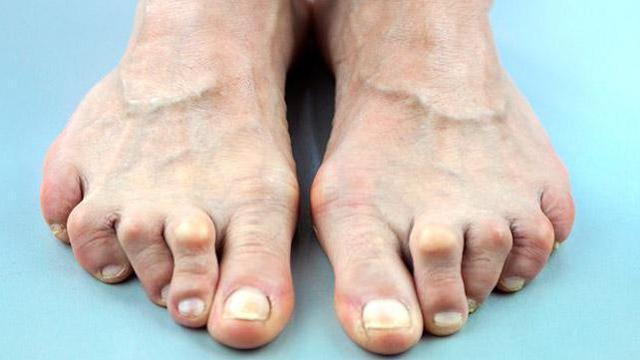 Лекарство от ревматоидного артрита в суставах рук, ног. Таблетки нового поколения, из Германии