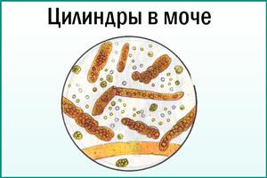 Моча по Нечипоренко. Норма у взрослых, беременных, детей. Таблица лейкоциты/эритроциты, как сдавать, расшифровка