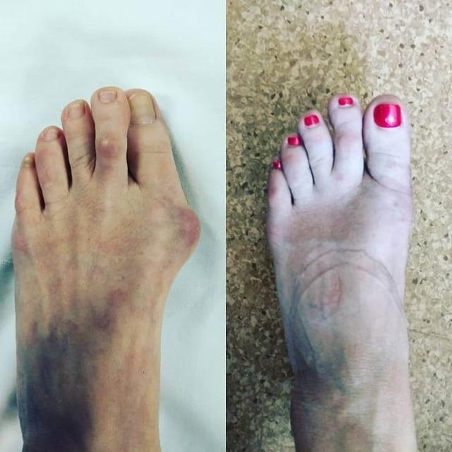 Какой врач лечит ноги? Шишка на ноге к какому врачу обращаться