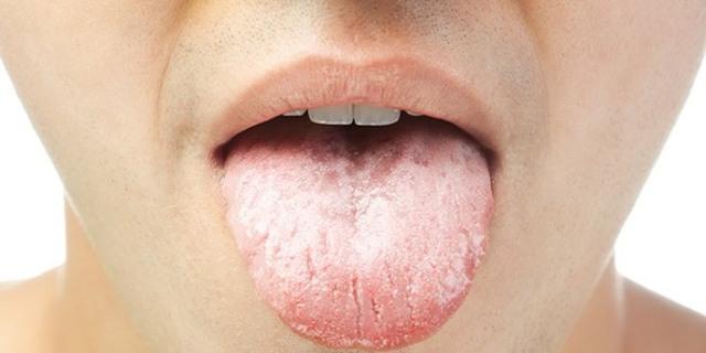 Аппендицит у человека. Где находится, как болит, первые признаки, симптомы у взрослых женщин и мужчин, первая помощь, что делать