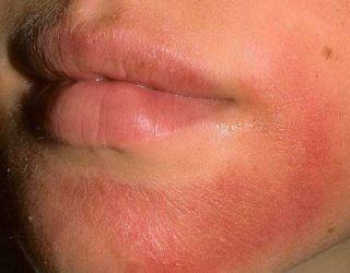 Зеркалин. Инструкция по применению от прыщей на лице, лечения угревой сыпи при беременности, отзывы дерматологов, цена раствора, лосьона, аналоги дешевле