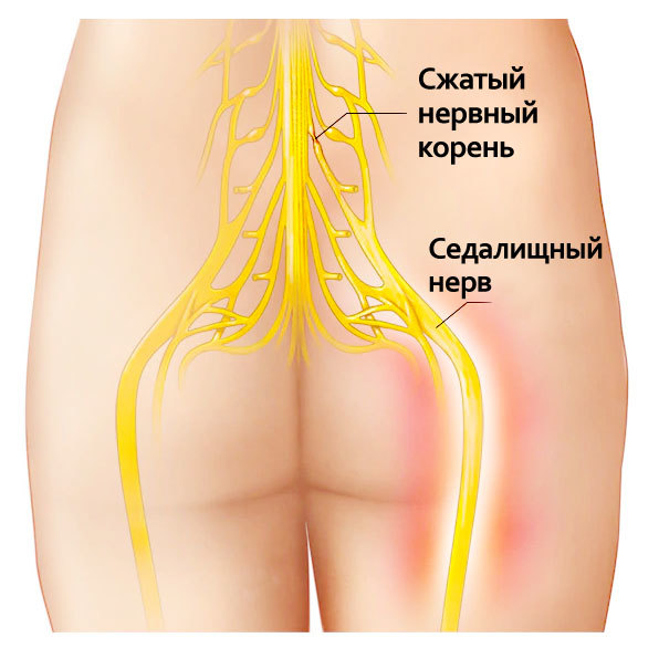 Защемление шейного нерва. Симптомы и лечение, оздоровительные упражнения для беременных женщин, детей в домашних условиях