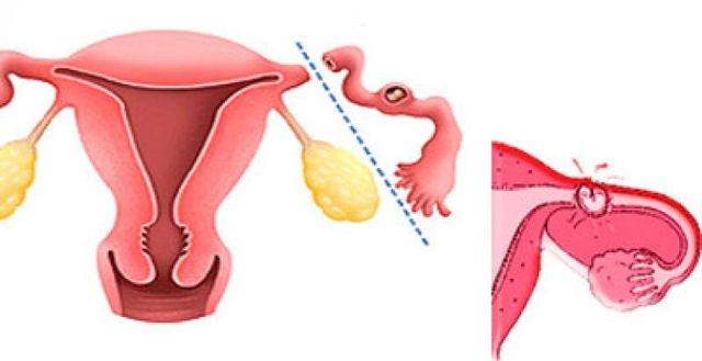 Внематочная беременность что это, признаки на ранних сроках, как определить в домашних условиях, причины, симптомы, как проходит операция по удалению, последствия