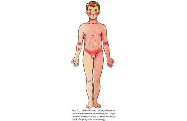 Скарлатина у детей. Симптомы и лечение, фото, как выглядит горло, язык, сыпь. Стадии, профилактика, инкубационный период, осложнения, последствия