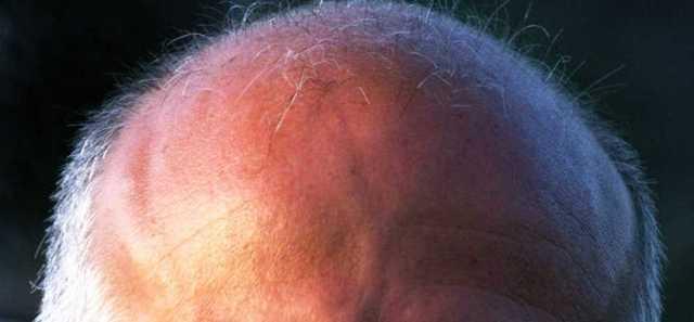 Мурашки по голове, телу, ногах, руках, лице. Причины ощущений у женщин, лечение, как избавиться