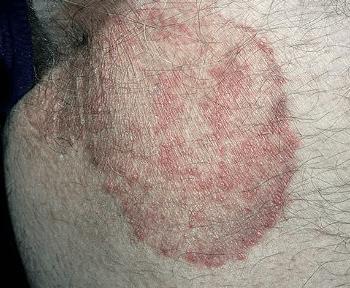 Красное пятно на коже чешется и шелушится. Что это такое, у взрослого, ребенка, на ноге, в области паха, чем лечить, если становится больше. Фото