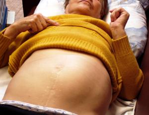Увеличенная селезенка. Причины и лечение народными средствами, травами, диета. Симптомы у ребенка, подростков, взрослых. Последствия