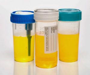 Желтая моча. Причины у женщин ярко-, темно-, очень желтая при беременности, с запахом, белыми хлопьями. Что это может быть
