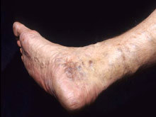 Операция по удалению вен на ногах при варикозе или лазер? Какая лучше, сколько стоят, отзывы пациентов
