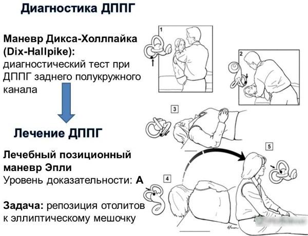Маневр Эпли от головокружения. Видео на русском языке, упражнения, отзывы