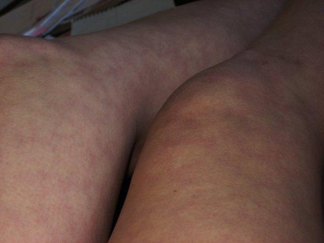 Пятна на коже коричневого цвета шелушатся: на спине, ногах, руках, животе. Фото, причины и лечение