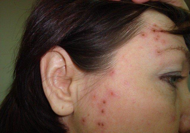 Сыпь на теле у взрослого, чешется, мелкая в виде прыщиков, крупная с покраснениями, что это может быть, фото, как лечить
