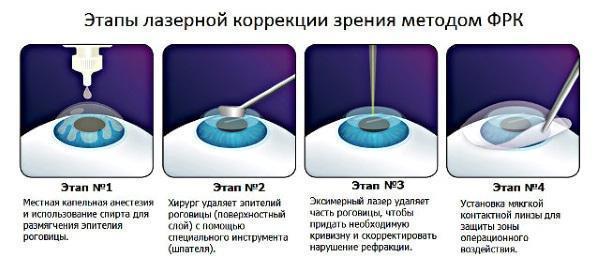 Операция на глаза лазером по замене хрусталика, при близорукости, отслоение сетчатки, катаракта, глаукома, ФРК, для улучшения зрения. Стоимость, послеоперационный период, последствия