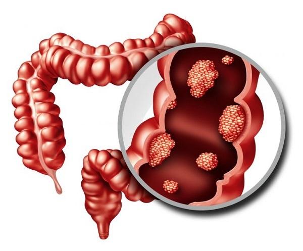 Аппендицит. Симптомы у взрослых мужчин. Стадии острый, хронический, флегмонозный, катаральный, осложнения, диагностика, УЗИ, лечение, диета, операция по удалению